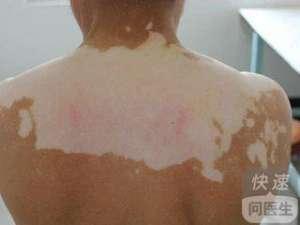 背部患上白癜风的诱因是什么